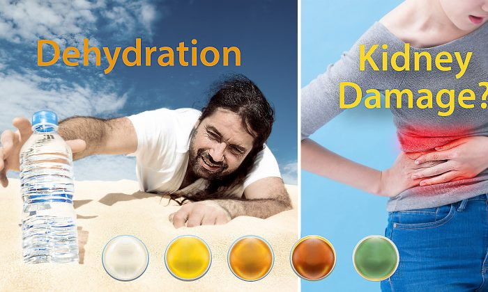 Each color of urine indicates different diseases