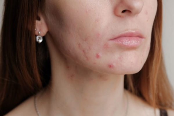 Acne on the chin is caused bywhat?